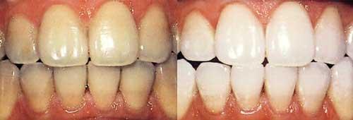 зубы в вариантах до и после