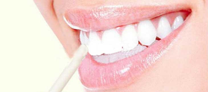 Преимущества и недостатки отбеливающего карандаша для зубов