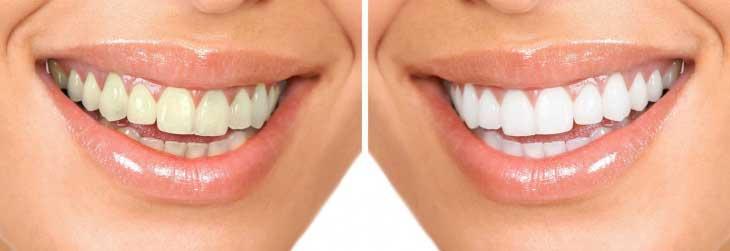 Какие существуют методы безопасного отбеливания зубов