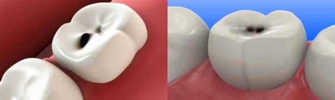 Точки на зубах