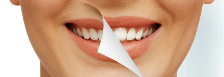 Как отбелить зубы в домашних условиях без вреда и возможно ли это вообще