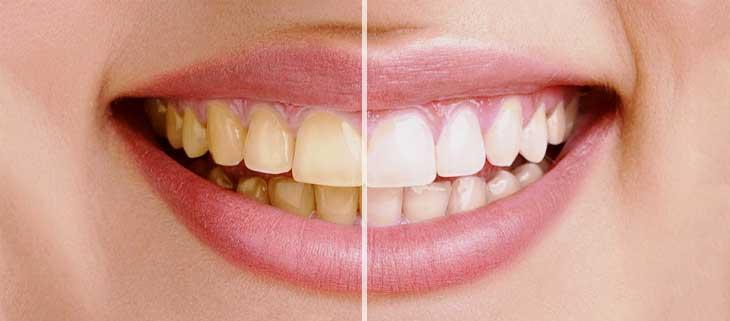Как быстро и без труда избавиться от зубного налета в домашних условиях