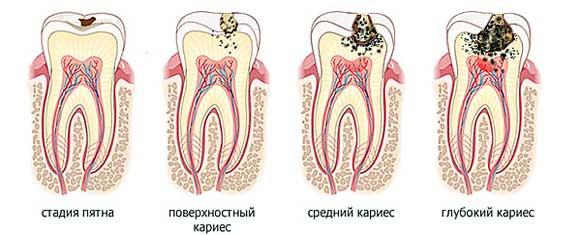 Причины возникновения и лечение черного налета на зубах у ребенка