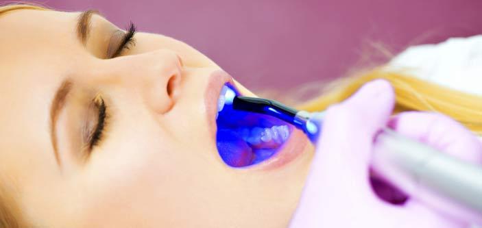 Очень подробно про лазерное отбеливание зубов