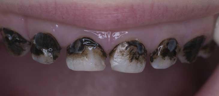 Насколько опасен черный налет на зубах и как его лечить?