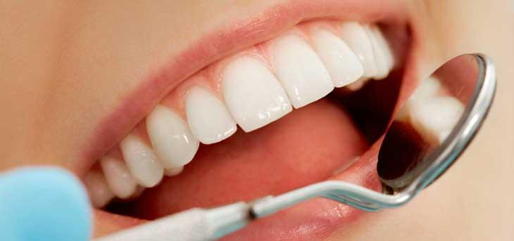 От чего возникает коричневый налет на зубах и как от него избавиться