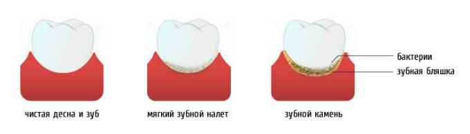 Для профилактики зубного камня гидроизоляция холодной кровли из гибкой черепицы