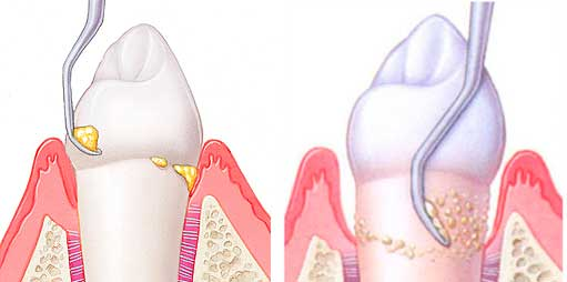 Подробное описание способов удаления зубного камня и рекомендации после процедур