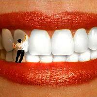 Желтый налет на зубах до и после отбеливания