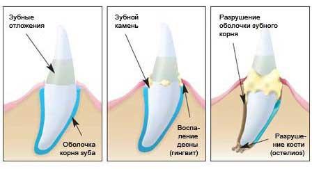 Твердые зубные отложения могут быстро вызывать осложнения