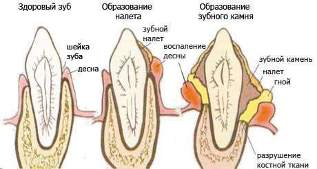 Твердые отложения на зубах появляются от плохой гигиены
