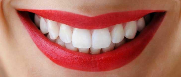 Что нужно знать про отбеливание зубов с пломбами