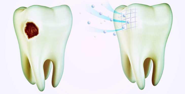Рименирализация эмали зубов