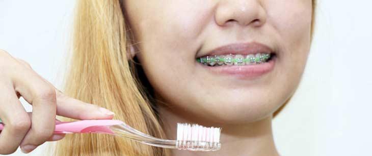 Как правильно чистить зубы с брекетами при помощи щетки, флосса, ирригатора и ершика?