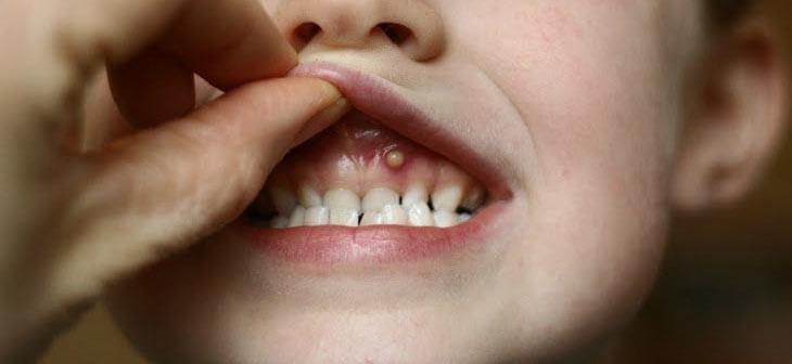 белый нападение бери  деснах у ребенка 2 лет
