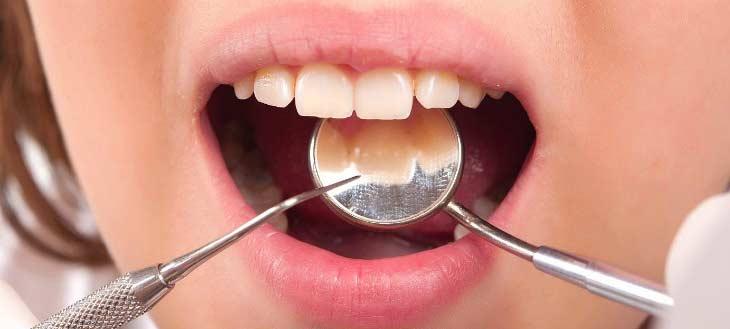 Какие зубные пломбы лучше ставить?