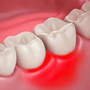 Опухшая десна около зуба