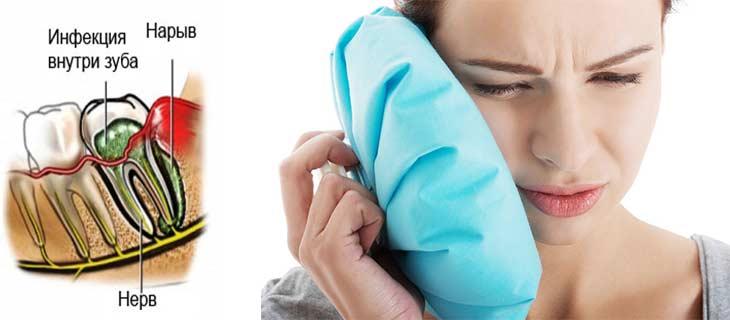 Флюс лечение в домашних условиях содой: как лечить - Зубы 56