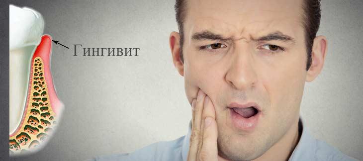 Симптомы и методы лечения разных форм гингивита