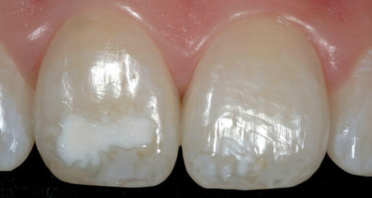 Причины и методы борьбы с гипоплазией зубной эмали