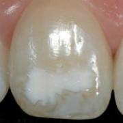 Гипоплазия на зубе