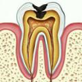 Зуб с хроническим пульпитом