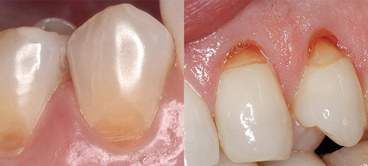 Подробно о причинах возникновения и лечении клиновидного дефекта зубов
