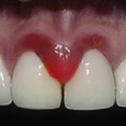 Воспаление между зубов