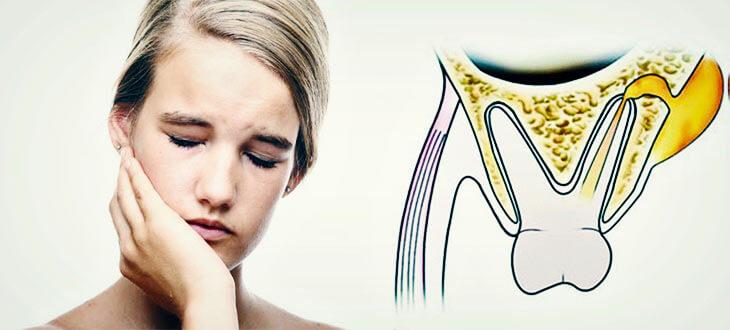 Причины и лечение воспаления надкостницы зуба (флюса)