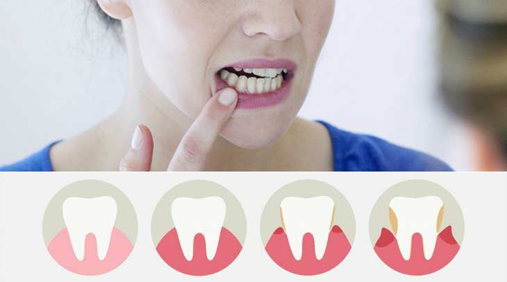 Что делать если десна отходит от зуба?