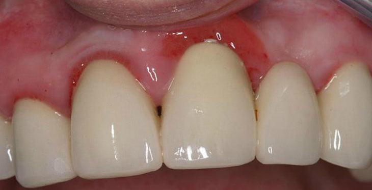 Что делать при воспалении десен около зуба?