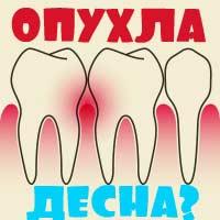 Опухла десна около зуба - что делать в домашних условиях, если десна болит?