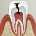 Как удаляют кариес с зубов