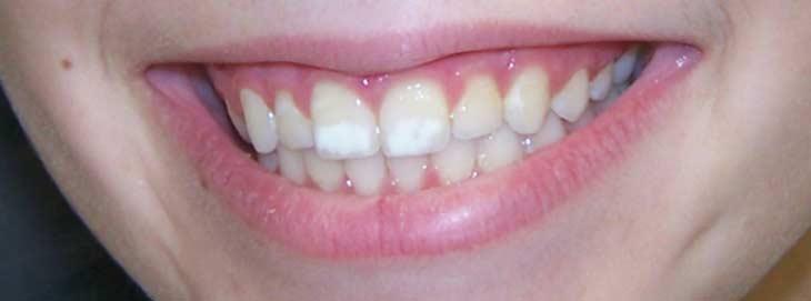 Почему появляются белые пятна на зубах и как от них избавиться?