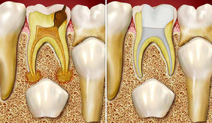 Особенности лечения заболеваний молочных зубов