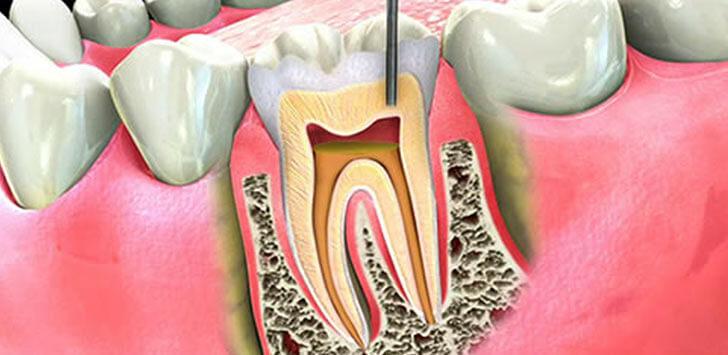 В чем опасность воспаления зубных нервов и как их лечить?