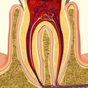 Воспаленный зубной нерв