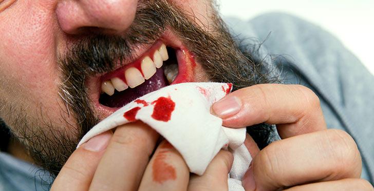 Каковы причины кровоточивости десен, что при этом делать и как их лечить?