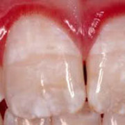 Белое пятно на зубе у ребенка