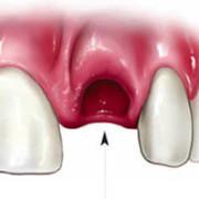 Лунка зубв