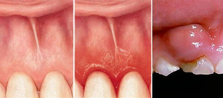 Коксартроз тазобедренного сустава 3 степени лечение в москве