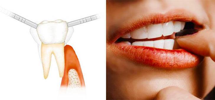 Как укрепить шатающийся зуб и особенности лечения подвижности зубов дома