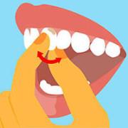 Шатание зуба
