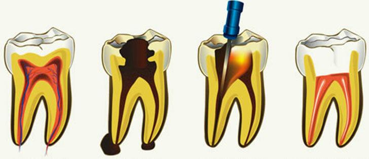 Как удаляют нерв из зуба, особенности и последствия