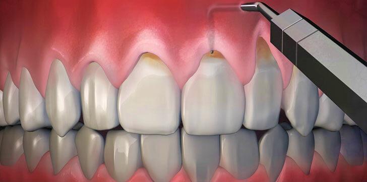 Что делать если оголилась шейка зуба и каковы причины заболевания?