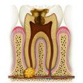 Зуб в разрезе с гранулемой