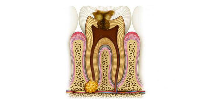 Гранулема на зубе в разрезе