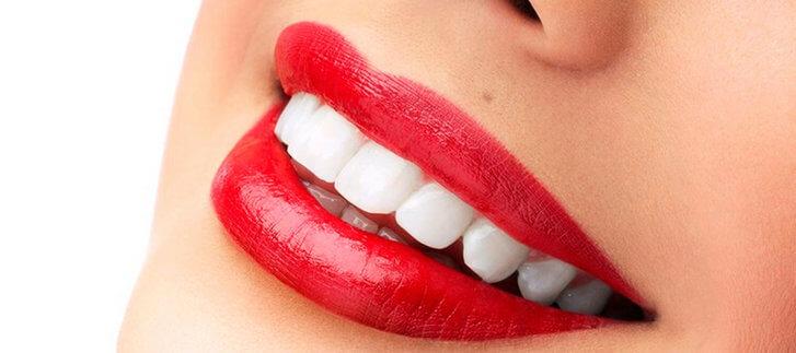 Все о виниринге зубов